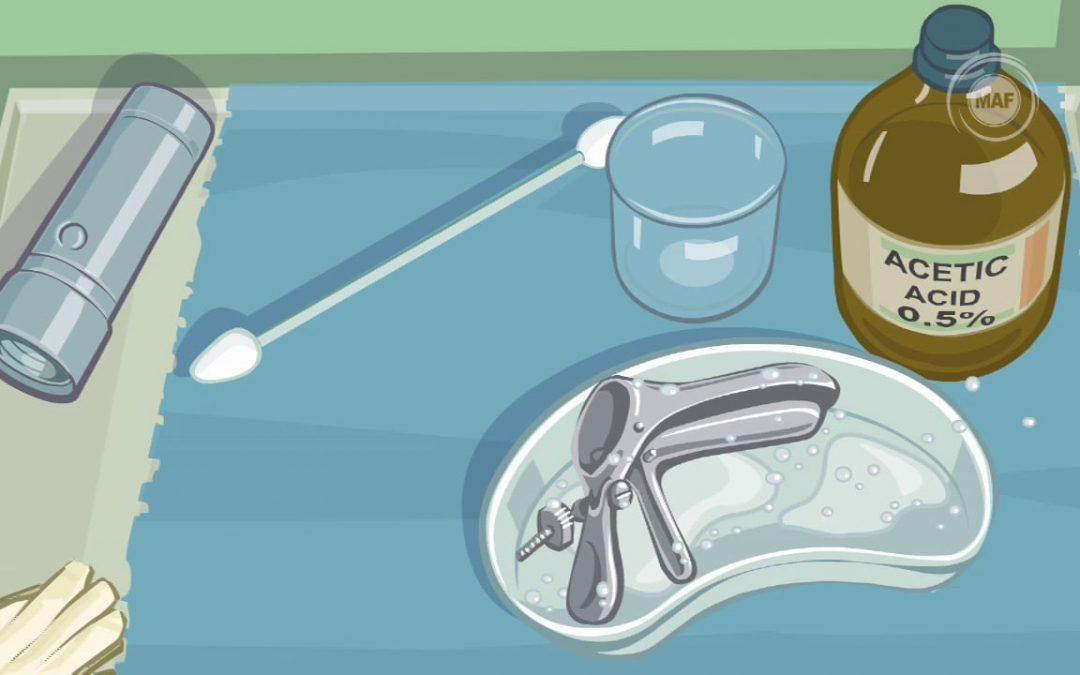 Les instruments pour dépister le cancer du col de l'utérus. /